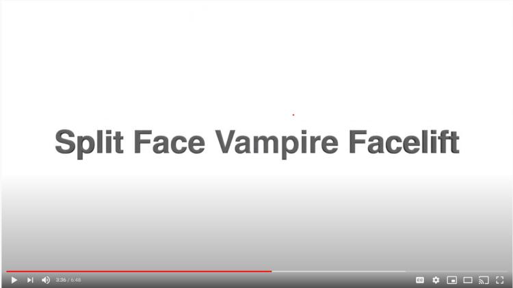 Split Face Vampire Facelift